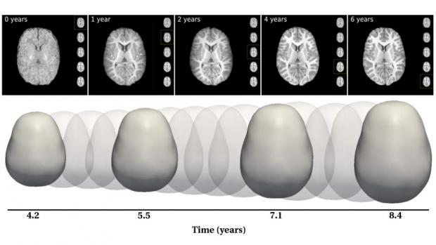 imaging of brain over time that shows increase in size and changes in structure