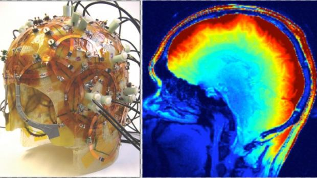 Helmet with Circuits and Thermal Image of Brain