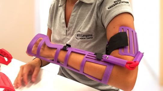 A purple plastic arm brace made with 3D printing on a person's arm.