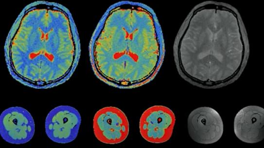 Brain scans in both color and black and white.