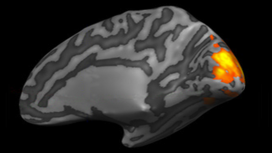 MRI brain scan with hindbrain highlighted.