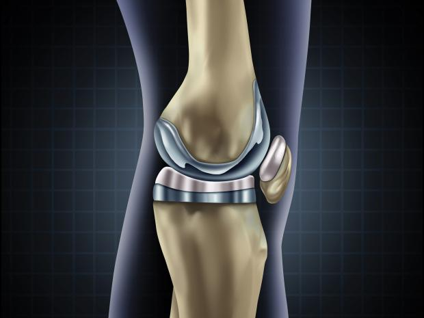 Knee replacement rendering