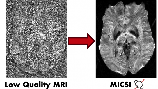 a comparison between a low quality MRI and MICSI